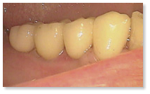 In this case, only four days after the MIMI®-Flapless implantation, the framework was fitted