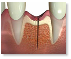 MIMI®-Flapless: The diameter of the bone cavity is smaller than the implant